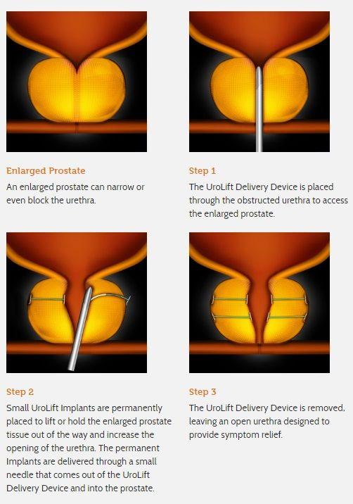 cáncer de próstata urolifta